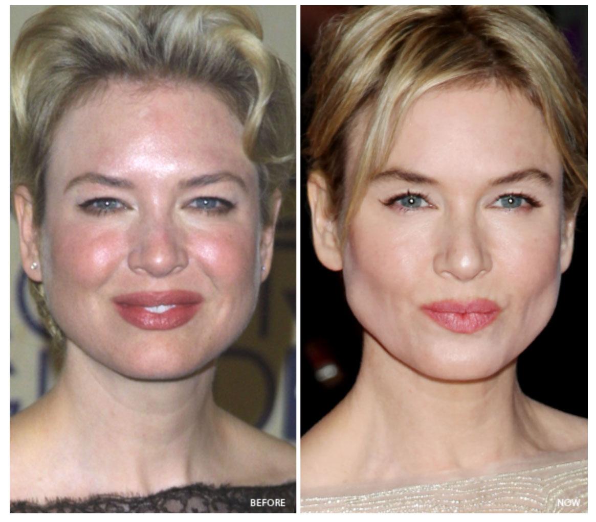 Renée Zellweger là một trong những ngôi sao Hollywood bị chứng đỏ mặt khá nghiêm trọng. Cô phải dùng liệu pháp spa cũng như mỹ phẩm trang điểm để che đậy kỹ. Ảnh: PR Photos; Startraks