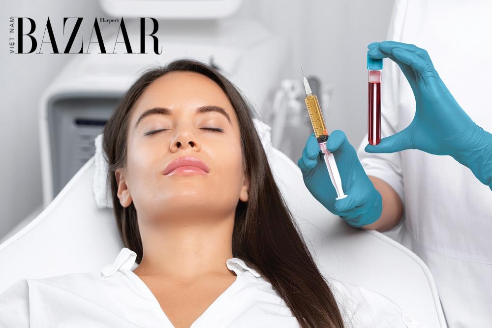 Các phương pháp trị rụng tóc mãn tính hiệu quả bạn cần biết – tiêm tiểu cầu PRP
