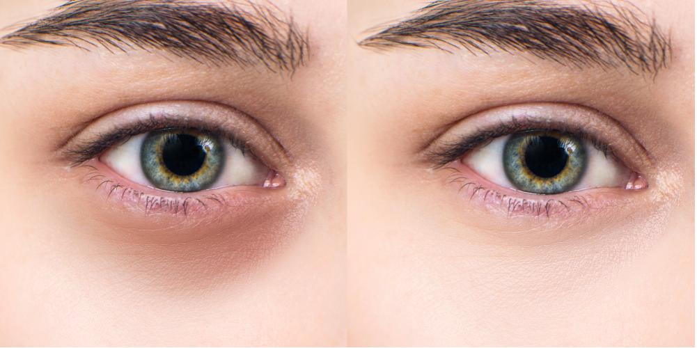 Nguyên nhân khiến mắt có quầng thâm