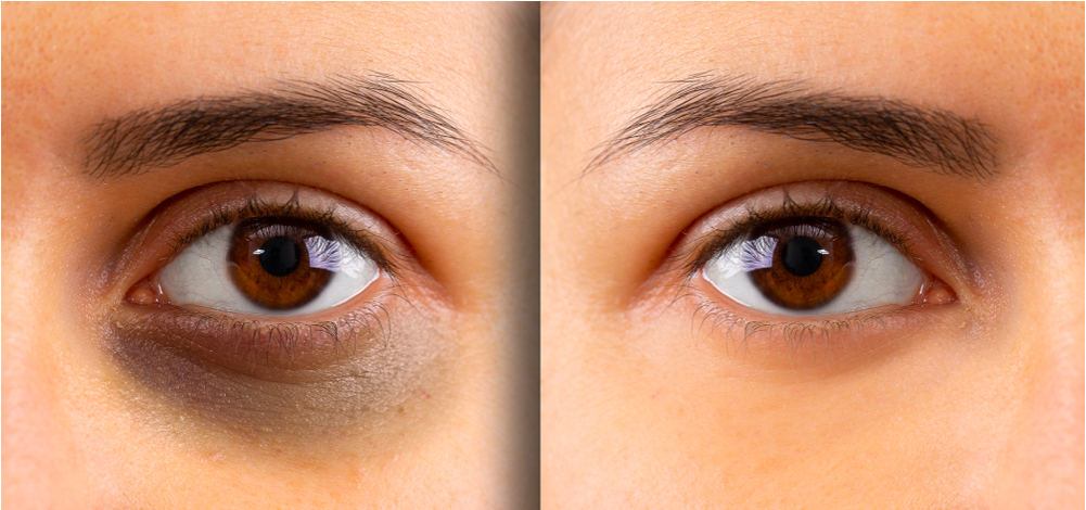 Cách che quầng thâm mắt bằng các mẹo và cách trang điểm đơn giản