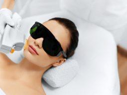 Có nên trị tàn nhang bằng tia laser