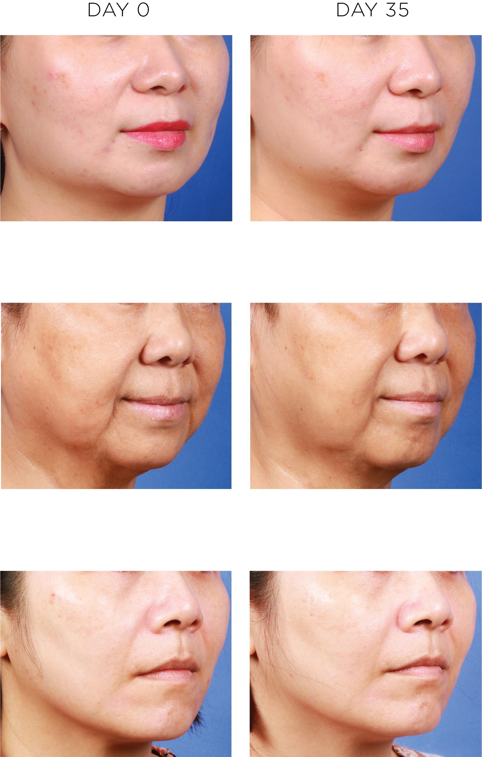 PPP Laser Clinic mang đến giải pháp đặc trị chống tăng sắc tố da CALECIM Professional Pigment Solution