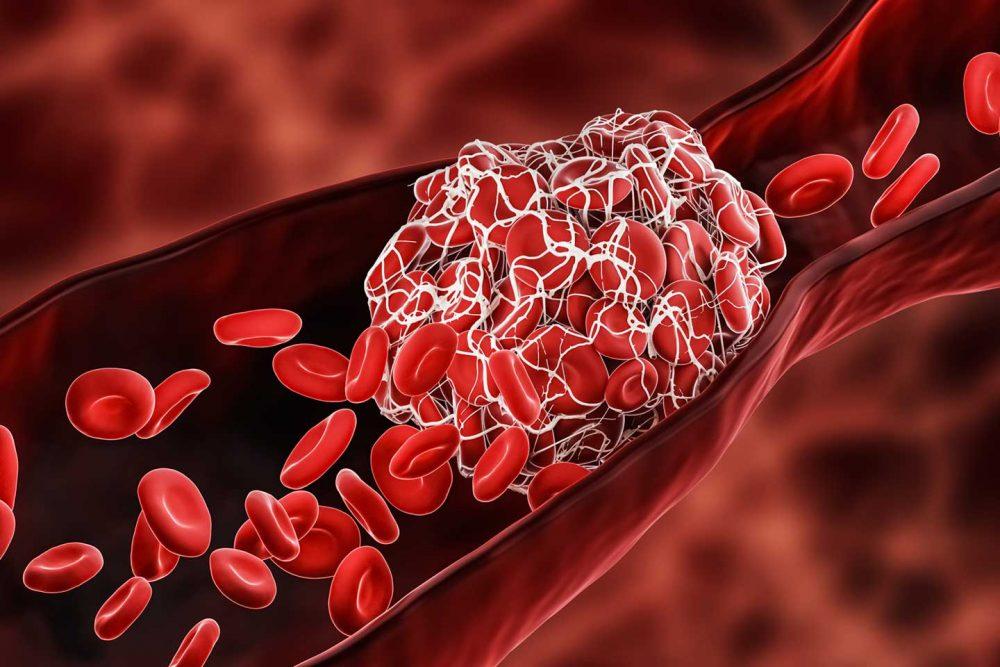 Các tiểu cầu kết dính lại, hình thành cục máu đông.